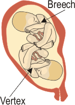 Twin B is Breech and Twin A is Vertex just like this Illustration.